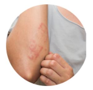 ImunoPure - nezeljeni efekti - rezultati